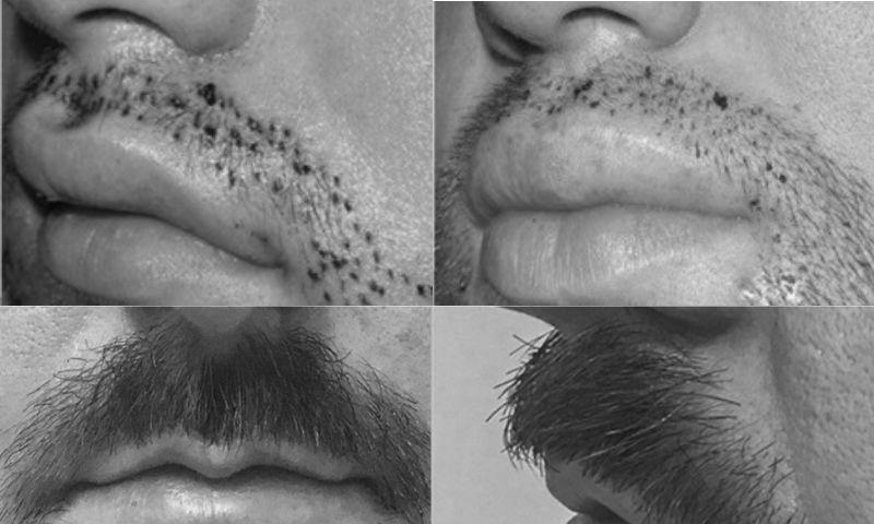A quién se aplica el injerto bigote