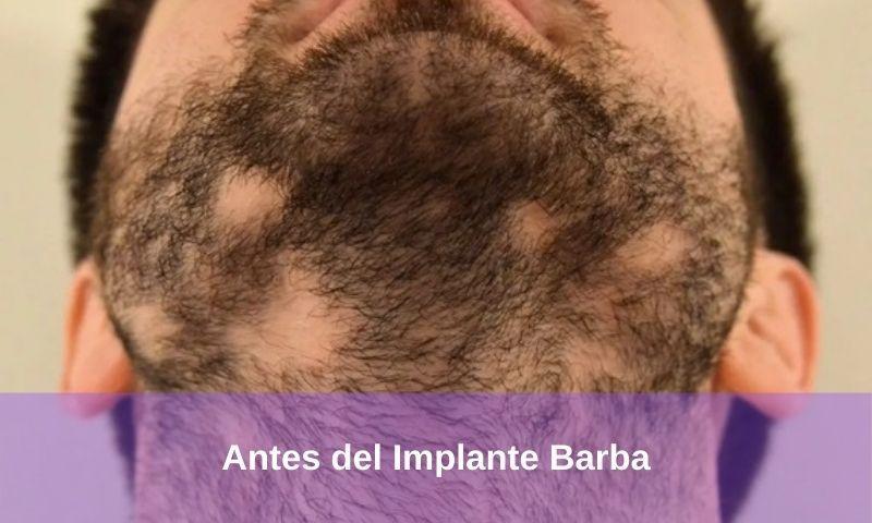 Antes del Implante Barba