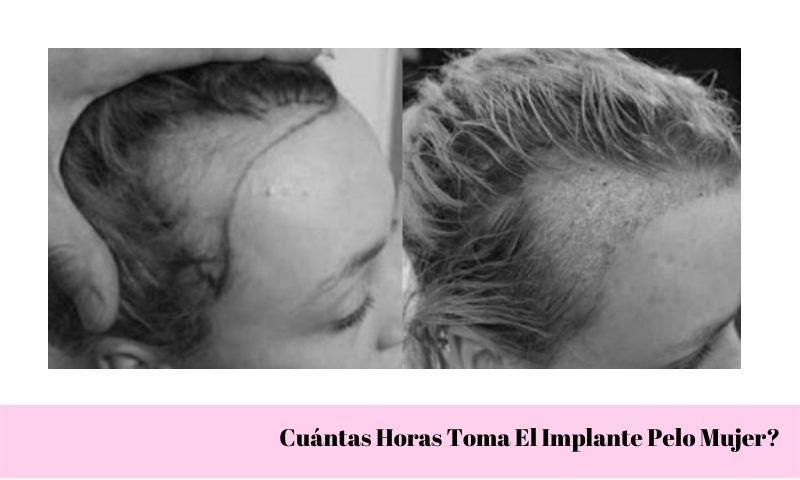 Cuántas Horas Toma El Implante Pelo Mujer?