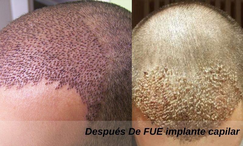 Después De FUE implante capilar