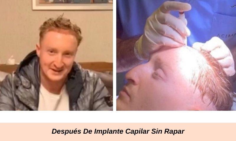 Después De Implante Capilar Sin Rapar