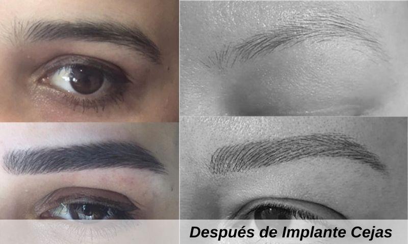 Después de Implante Cejas