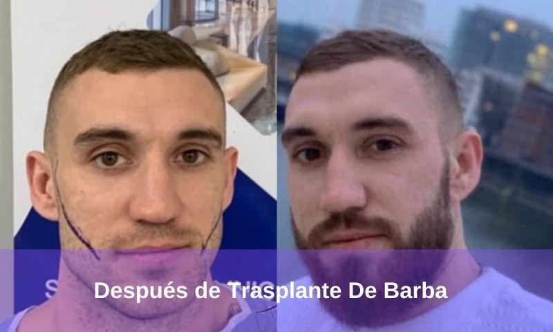 Después de Trasplante De Barba