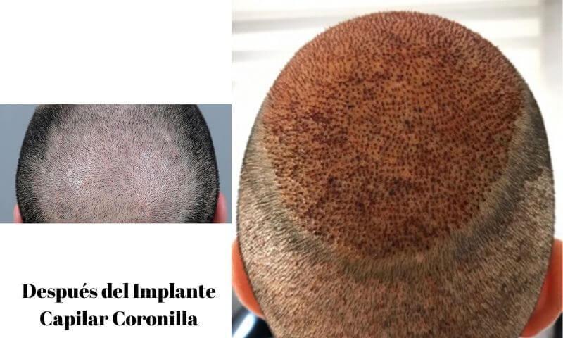 Después del Implante Capilar Coronilla