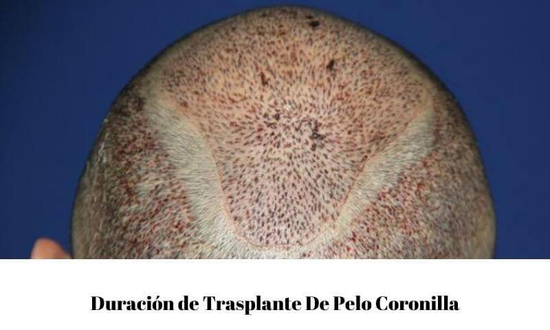 Duración de Trasplante De Pelo Coronilla