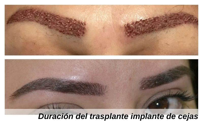 Duración del trasplante implante de cejas