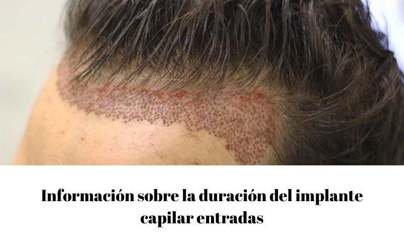 Información sobre la duración del implante capilar entradas