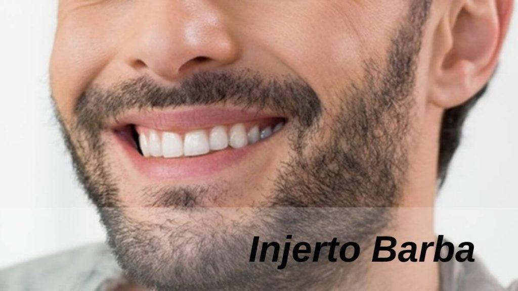 Injerto Barba