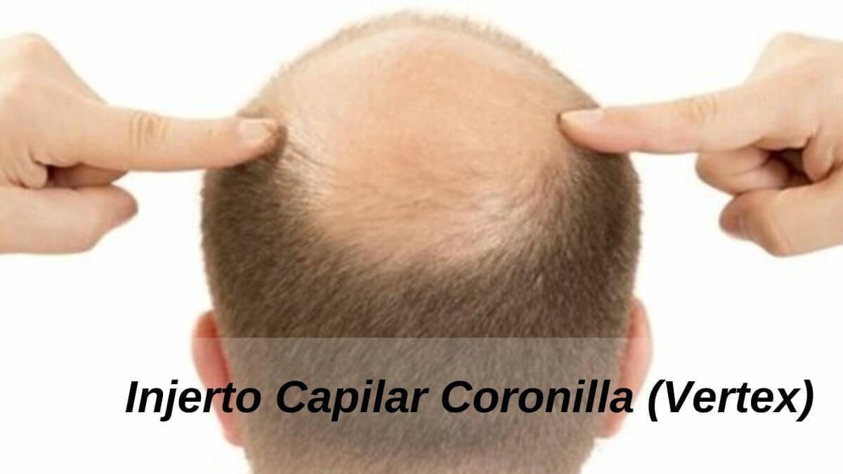 Injerto Capilar Coronilla (Vertex)