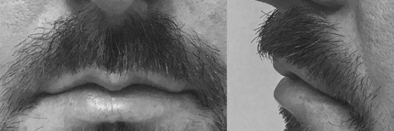 Primer mes después de injerto de bigote
