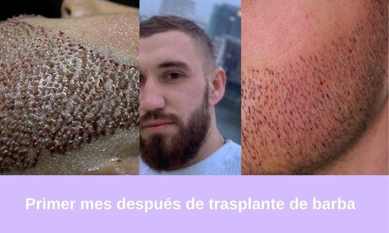 Primer mes después de trasplante de barba