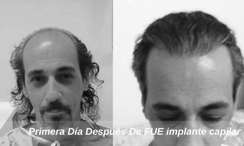 Primera Día Después De FUE implante capilar