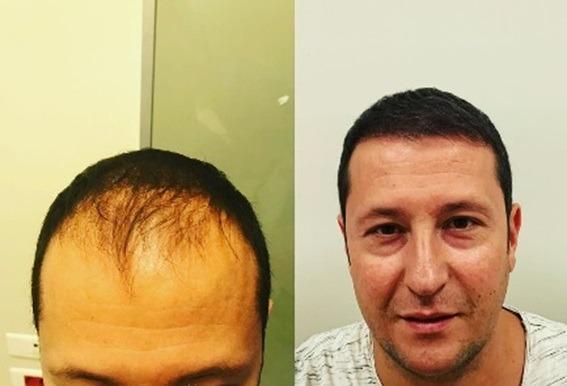Primera Semana Después De Microinjerto