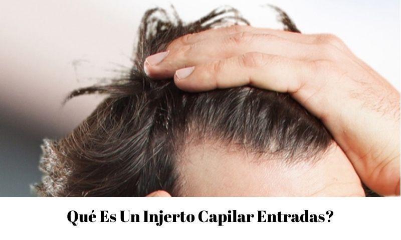 Qué Es Un trasplante de cabello entradas
