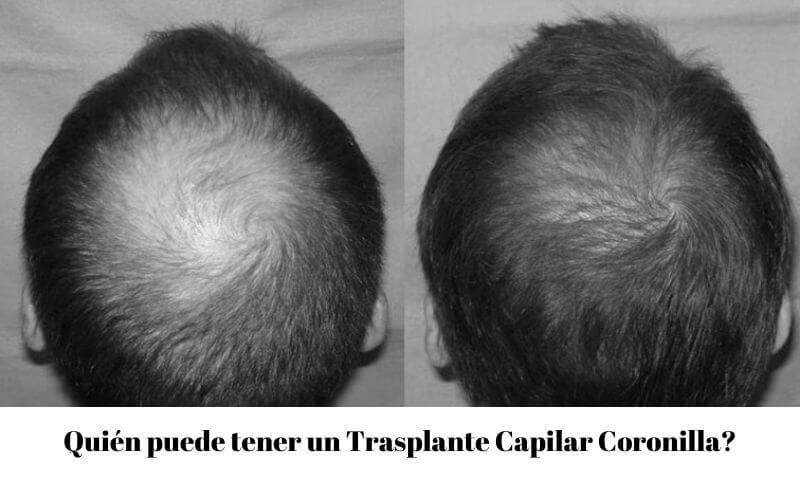 Quién puede tener un Trasplante Capilar Coronilla?