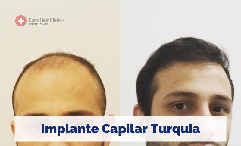 Implante Capilar Turquia