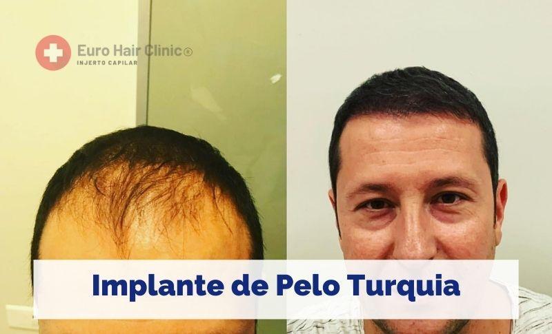 Implante de Pelo Turquia