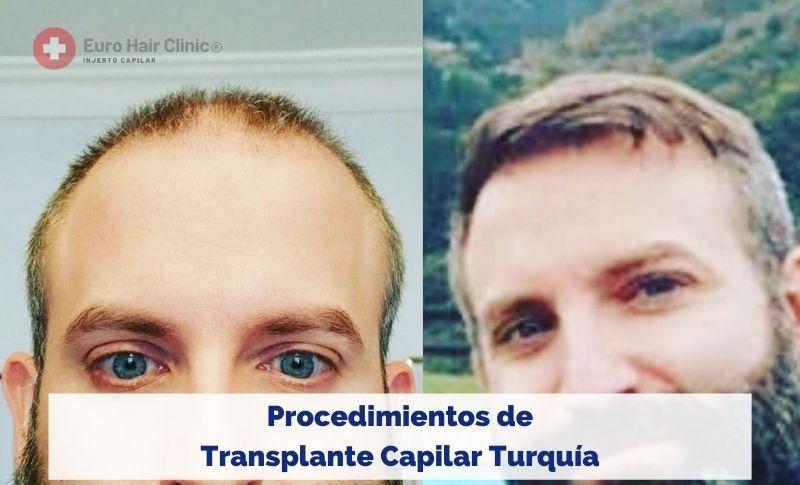 Procedimientos de Transplante Capilar Turquía