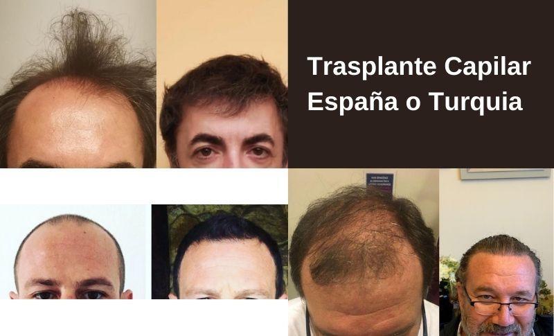 Trasplante Capilar España o Turquia