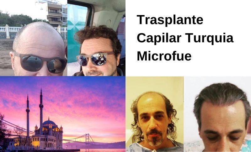Trasplante Capilar Turquia Microfue