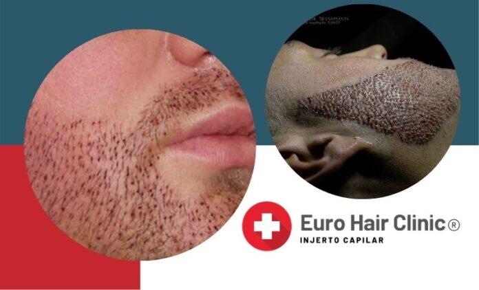 Trasplante Barba Turquia