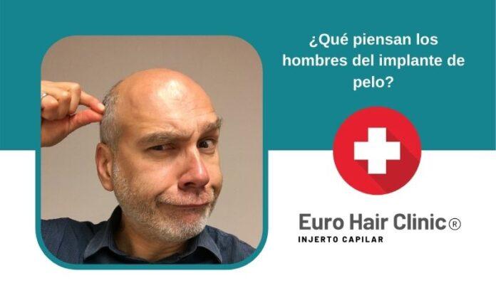 ¿Qué piensan los hombres del implante pelo