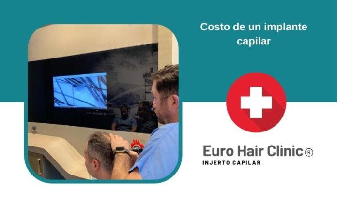 Costo de un implante capilar
