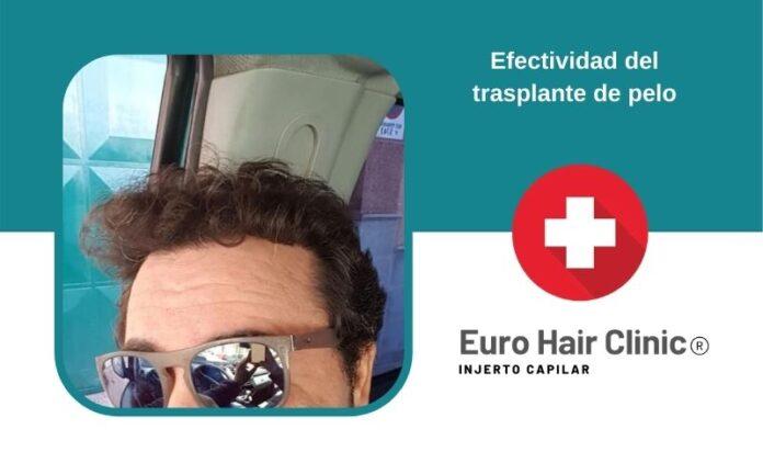 Efectividad del trasplante de pelo