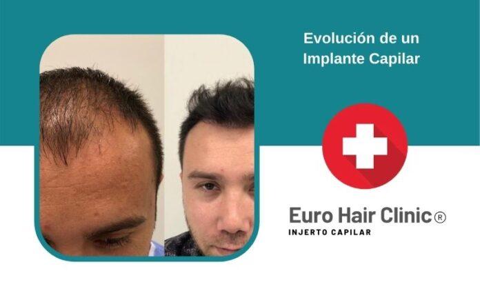 Evolución de un Implante Capilar