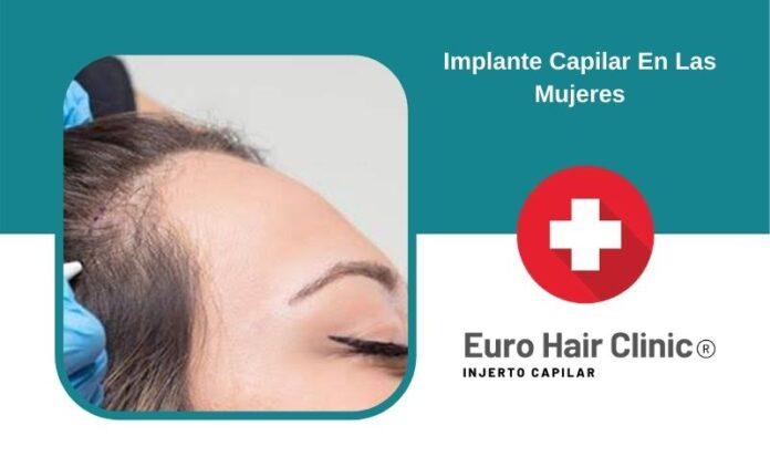 Implante Capilar En Las Mujeres