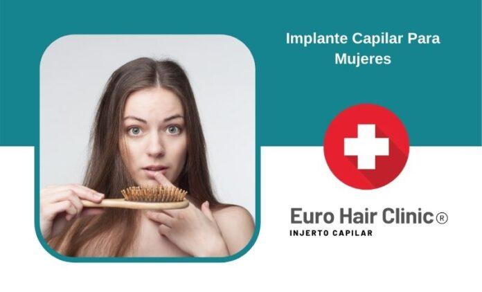 Implante Capilar Para Mujeres