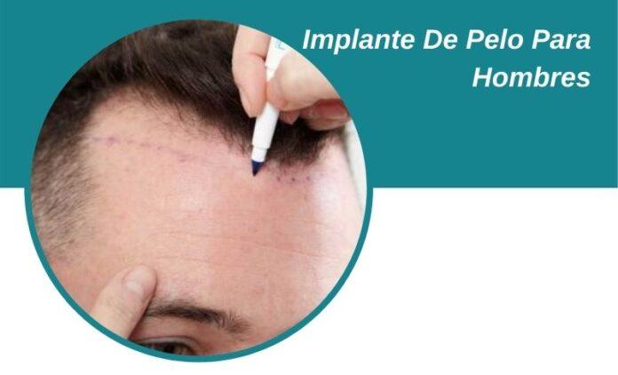 Implante De Pelo