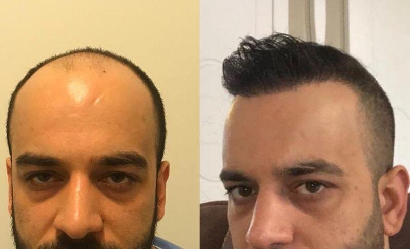Implante de Pelo en Turquia
