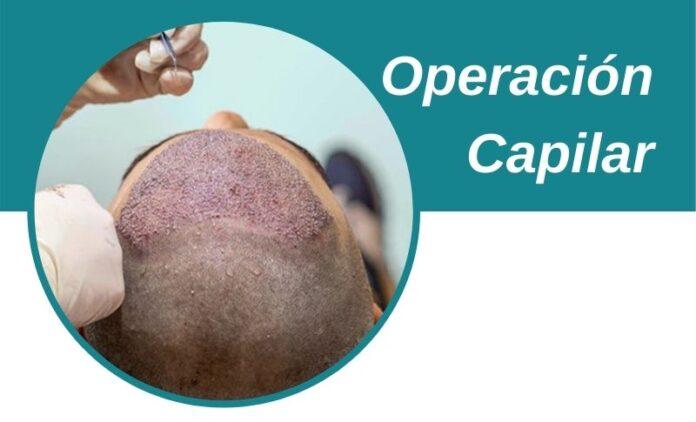 Operación Capilar