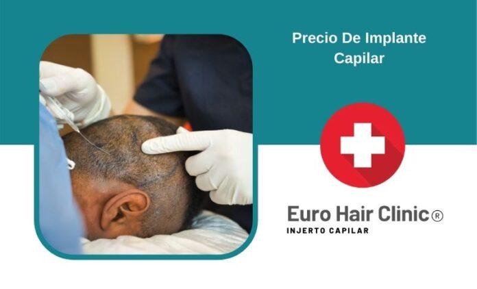 Precio De Implante Capilar