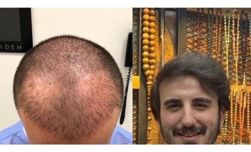 Precio de un implante capilar