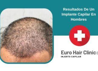 Resultados De Un Implante Capilar En Hombres