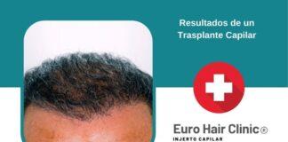 Resultados de un Trasplante Capilar