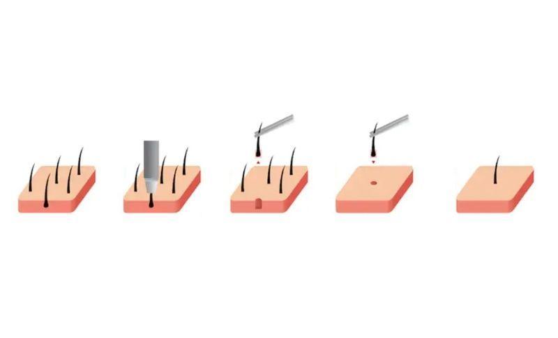 Tecnica FUE Microinjerto